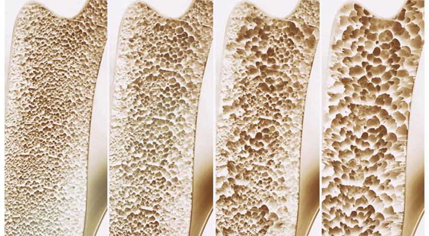 Kemik erimesi (osteoporoz) nedir? Nasıl tedavi edilir?