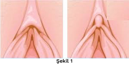 Klitoris Estetiği