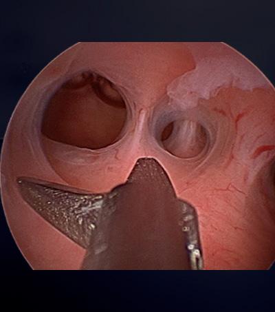 Histeroskopi ile rahim içi yapışıklık açılması (Asherman sendromu)